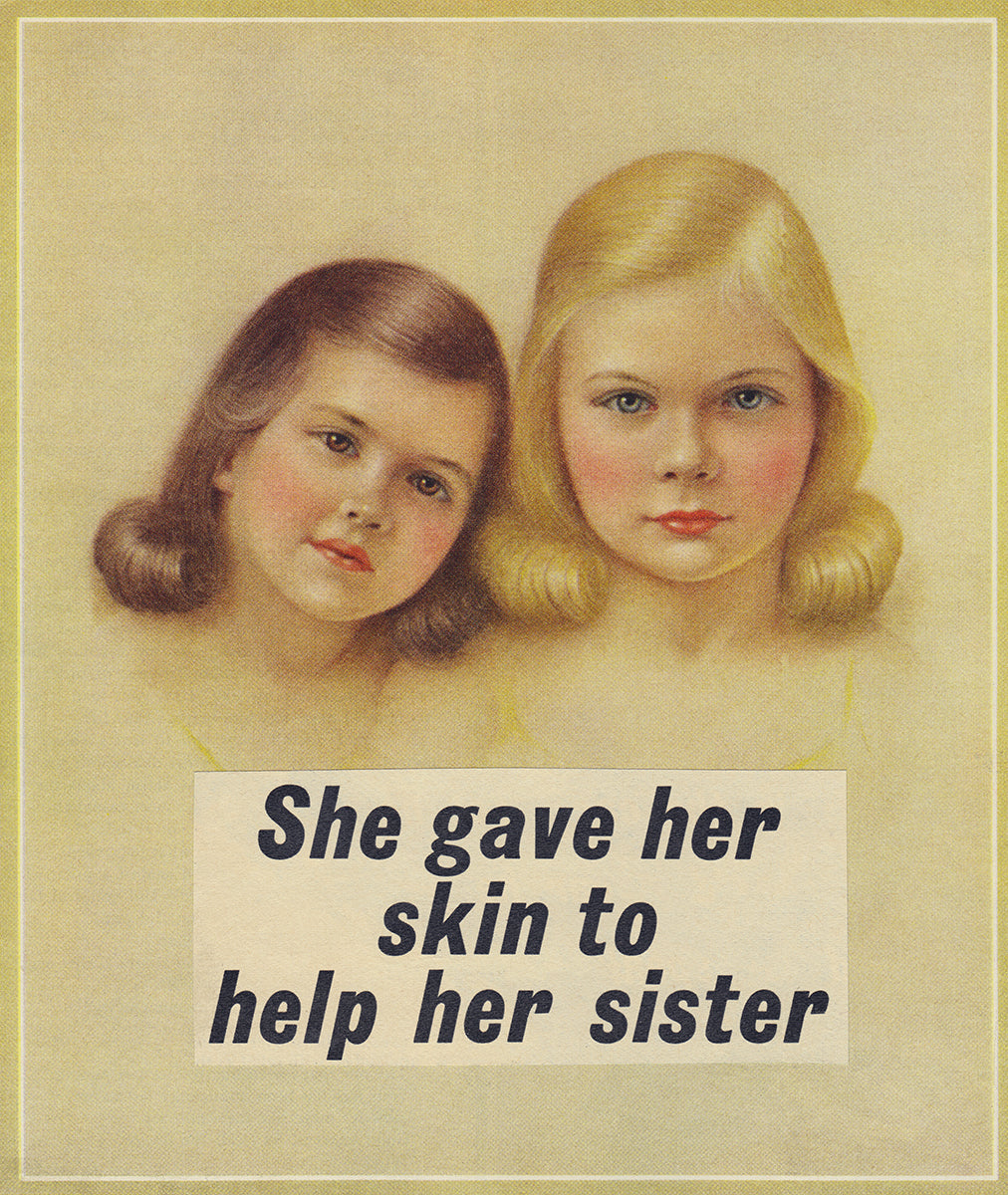 She Gave Her Skin to Help Her Sister print