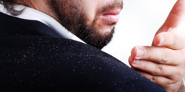 What Causes Dandruff and How to Get Rid of It