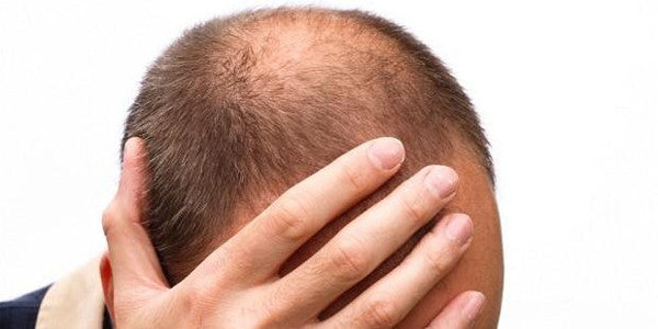 The History of Male Hair Loss Treatments