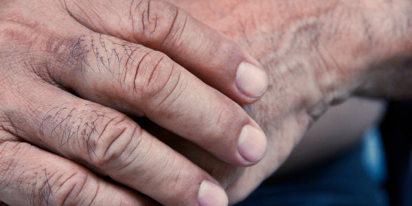 what causes fingertips to crack in winter