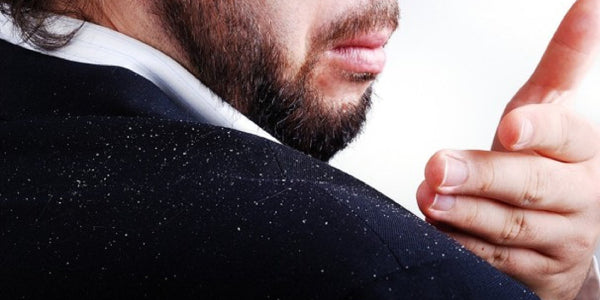 How Men Can Prevent Dandruff and Flakes in Their Hair