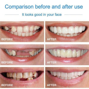 New Generation Snap On PERFECT SMILE Veneers