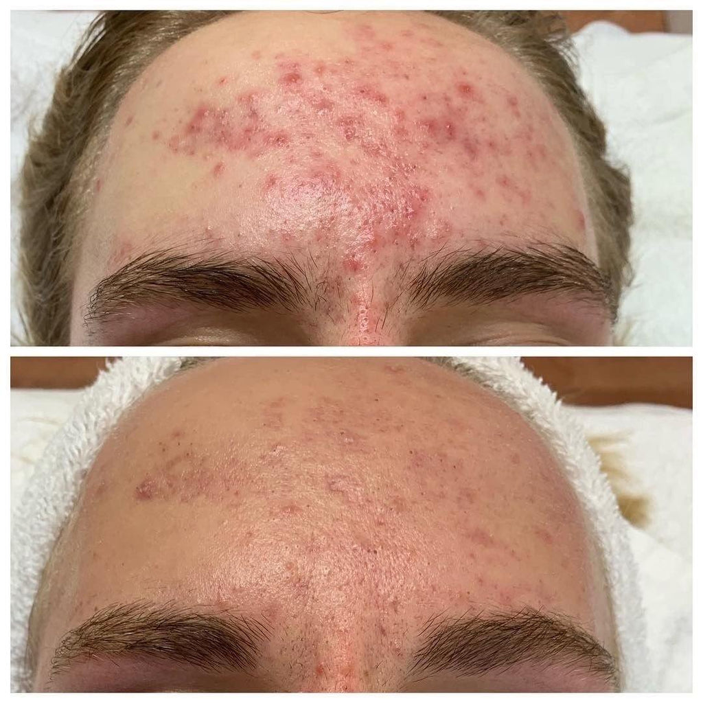 Acne Products and Treatments that Simply Work - The Body Clinic Day Spa