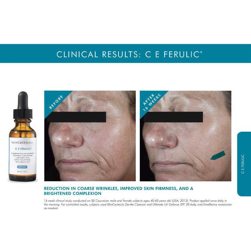 CE Ferulic® Canada SkinCeuticals Authorized Skinceuticals Retailer Canada Toronto Mississauga C E Ferulic Results C E Ferulic Before and After Results Canada
