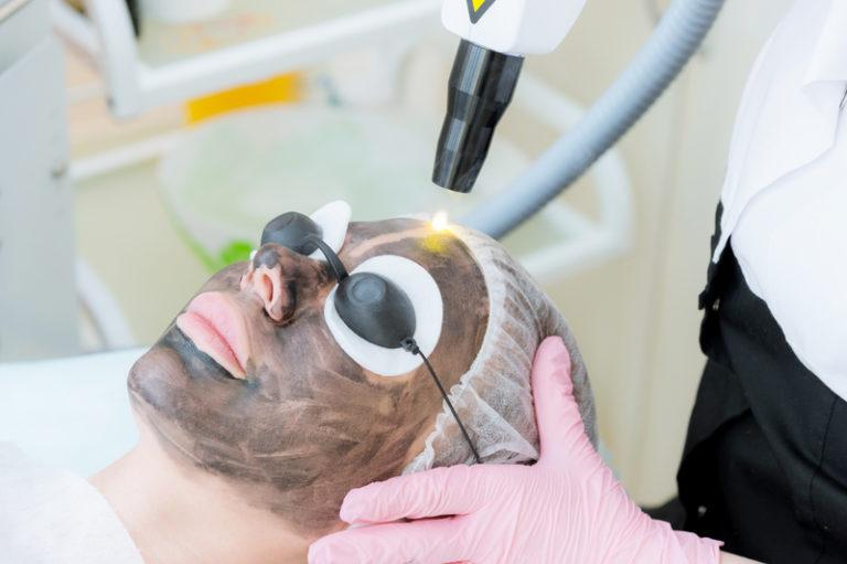 Carbon laser facial treatment - Our Treatments - ABC Clinic abcclinc