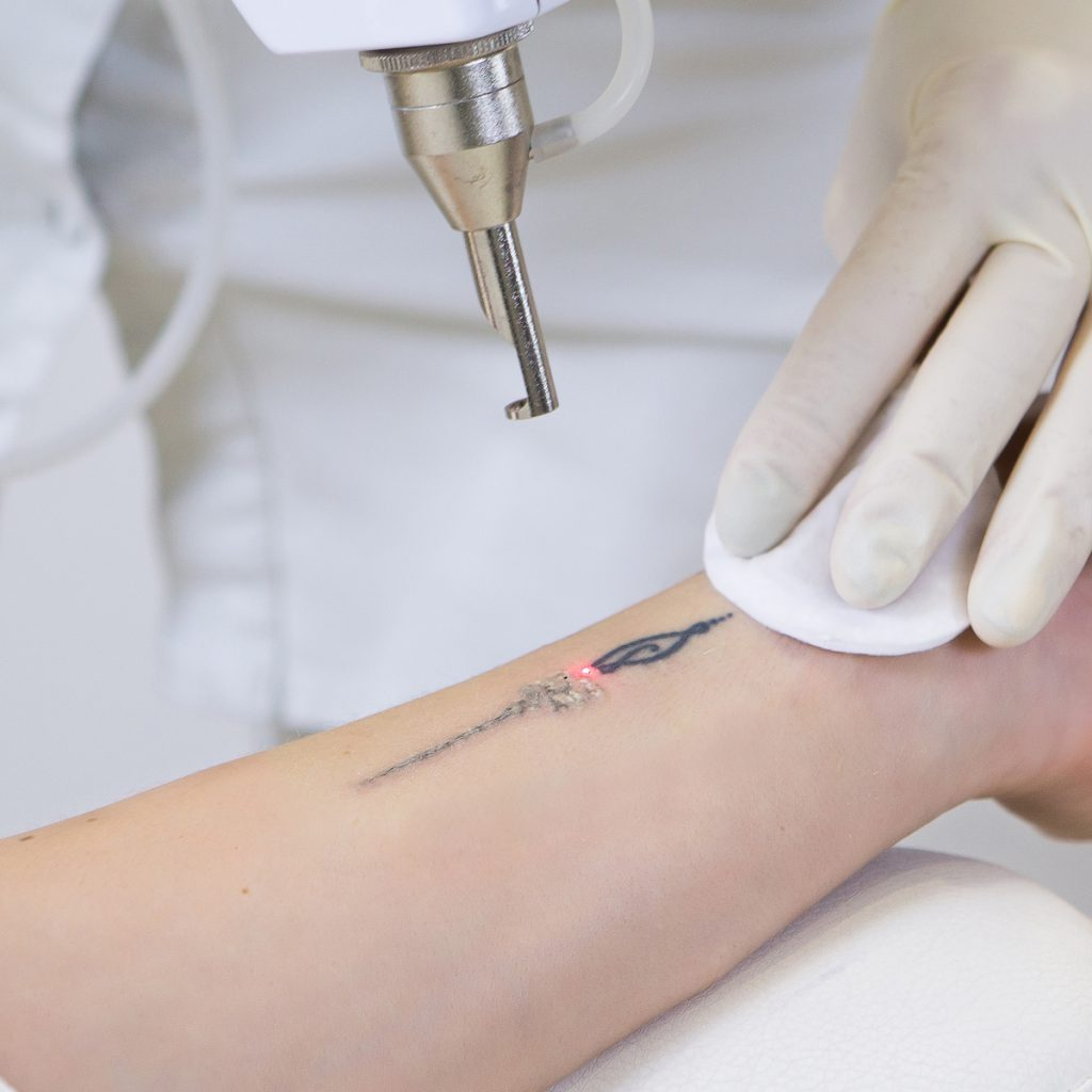 Tattoo Laser Removal Treatment - Our Treatments - ABC Clinic abcclinc