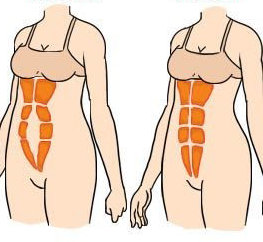 Image showing how normal abdominal muscles look and abdominal muscles when they separate