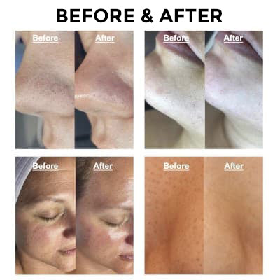 blackhead-remover-pore-deep-cleaner-before-after