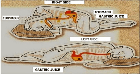 sleeping on left side can reduce heartburn. thelaval