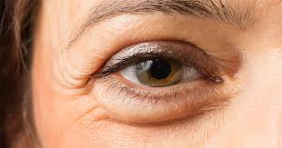 Thin slice on swollen eye or red eye can reduce the swelling and cool the face, laval
