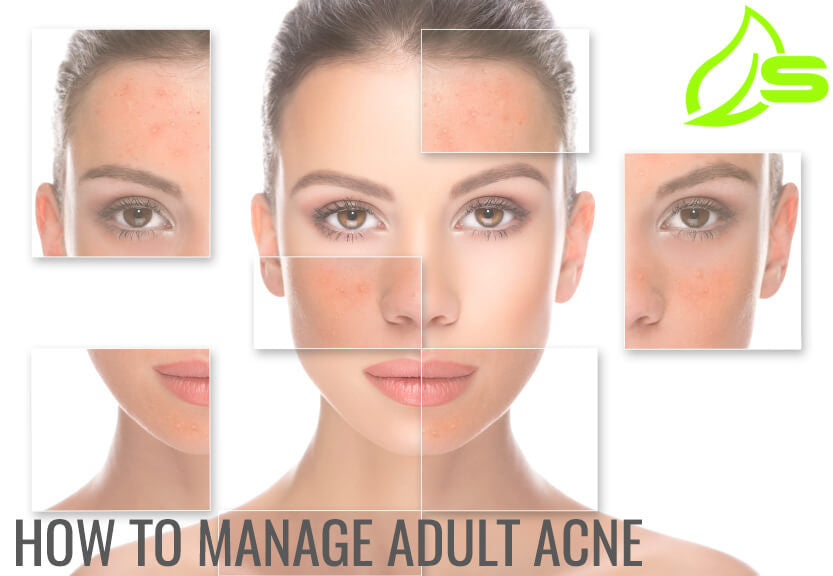 How to Manage Adult Acne