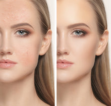 Load image into Gallery viewer, Magic Skin Retouch | 10 Photoshop Actions