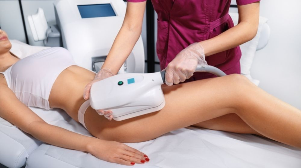CoolSculpting - Before and after: Can it be combined with laser hair removal