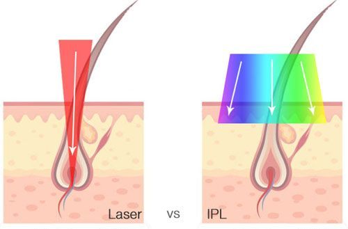 ic : IPL vs. Laser: Which one is better for you?