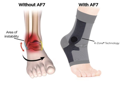 OS1st - AF7 Ankle Bracing Sleeve, Before and After Example, Team Perfet