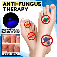 Load image into Gallery viewer, Anti-fungal Home Treatment Set