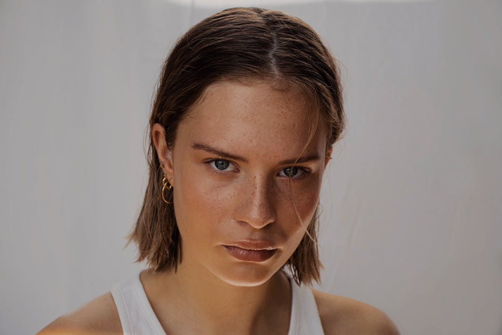 woman with hyperpigmentation looking at camera