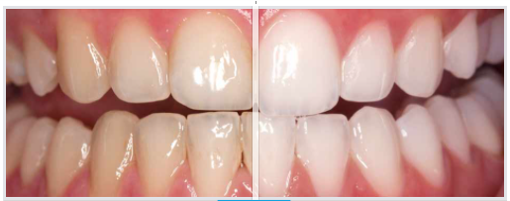 Whitening Gel (4-pack)