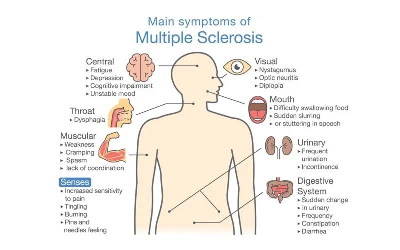 symptoms of multiple sclerosis, fatigue, vision problems, tingling, numbness, muscle spasm, mobility problems, problems with thinking, learning and planning