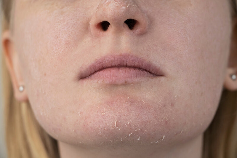 Woman with dry skin that needs soothing ingredients like hyaluronic acid in SLMD Skincare