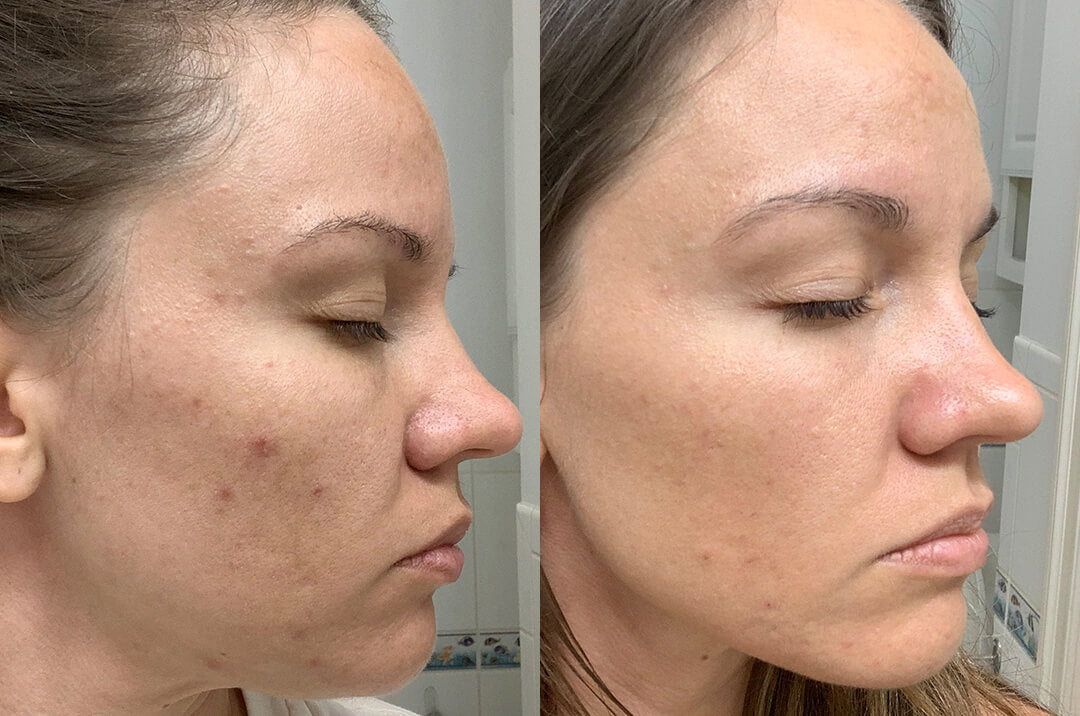 A woman with less post-inflammatory hyperpigmentation after using Blemish-Prone Skin System by SLMD Skincare