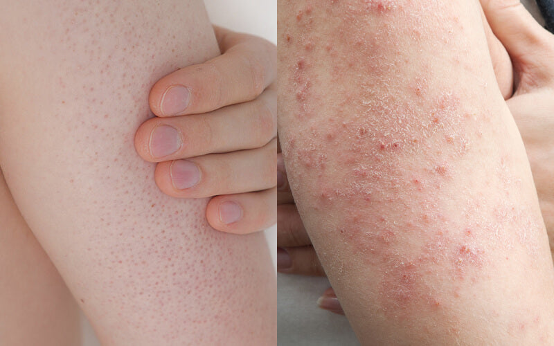 The difference between eczema and keratosis pilaris which can be treated with Body Smoothing System by SLMD Skincare