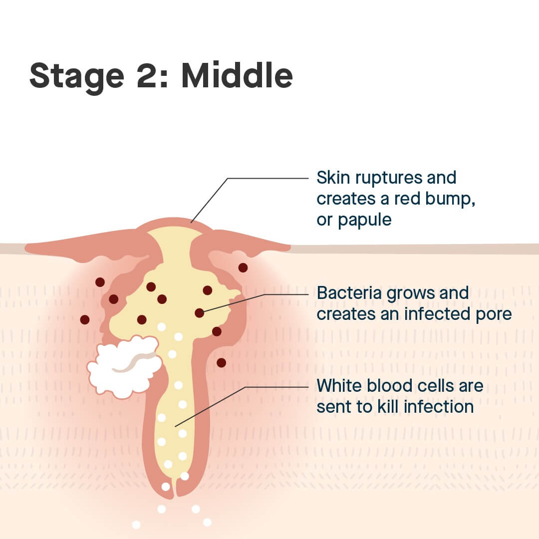 middle stages of a blemish can be treated with Blemish-Prone Skin System by SLMD Skincare