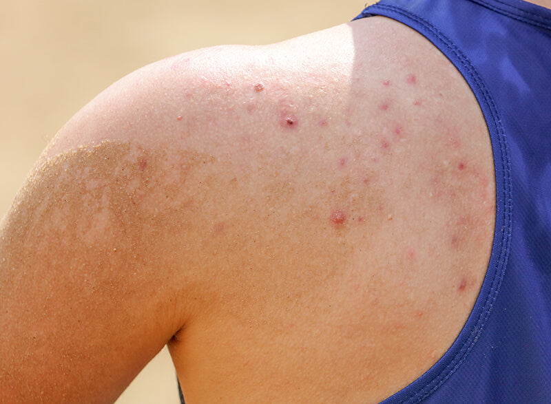 Body blemishes on shoulder that can be treated with Salicylic Acid Body Wash by SLMD Skincare