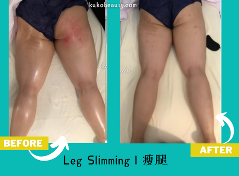 Best leg slimming in singapore orchard