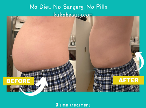 tummy slimming in singapore