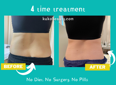 effective body slimming in singapore