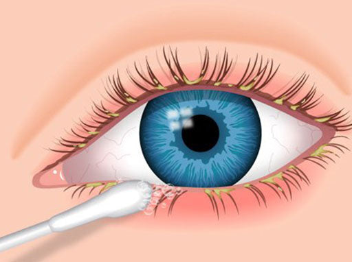 Drawing of a q-tip cleaning debris from an eye