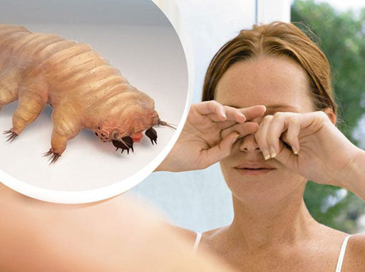 A demodex mite and a woman rubbing her eyes