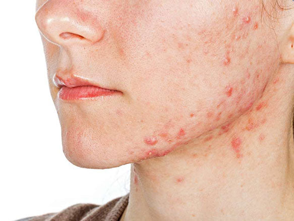 Close up of a person's chin with bad acne