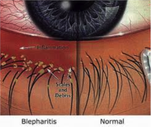 Illustration of a Demodex Infected Eye and a Normal One