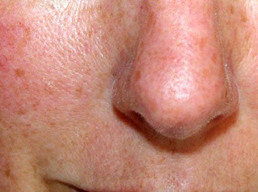 Extreme closeup of a face with rosacea