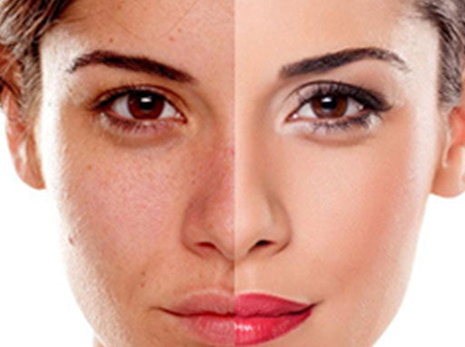 A comparitive photo of a woman's face with and without makeup
