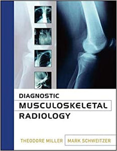 Diagnostic Musculoskeletal Radiology [Hardcover] Miller, Theodore and Schweitzer, Mark by Miller David, 2004