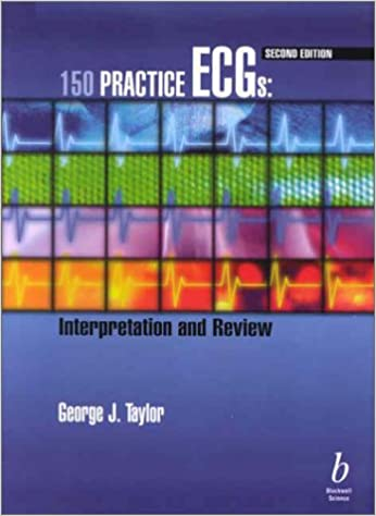(Ex)150 Practice Ecgs Interpretation And Review 2/E by Taylor, 2002