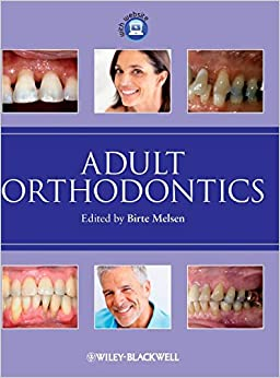 Adult Orthodontics (Hb 2012) by Melsen B, 2012