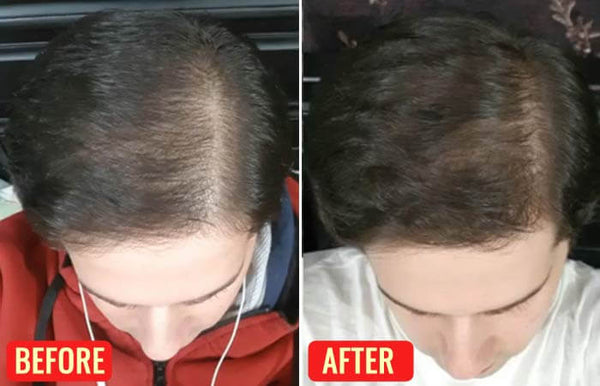 Emu Oil benefits for hair growth (before and after pictures)