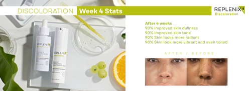 Before and after skincare pictures. Discoloration, age spots, improved skin tone Replenix
