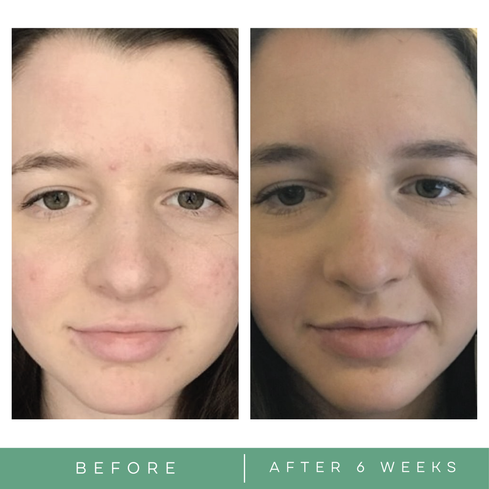 Before and after acne pictures skincare by Replenix