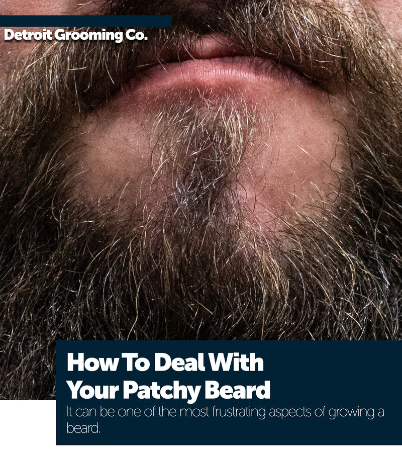 How to deal with your patchy beard