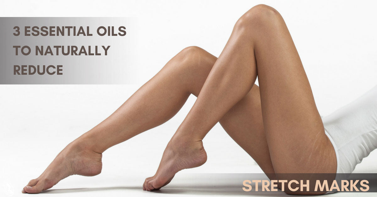 3 Essential Oils to Naturally Reduce Stretch Marks