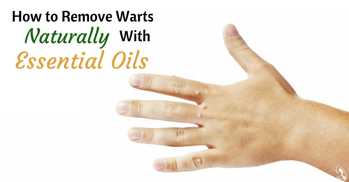 How to Remove Warts Naturally With Essential Oils