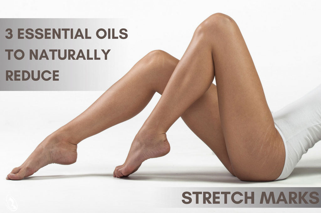 essential oils to naturally reduce stretch marks