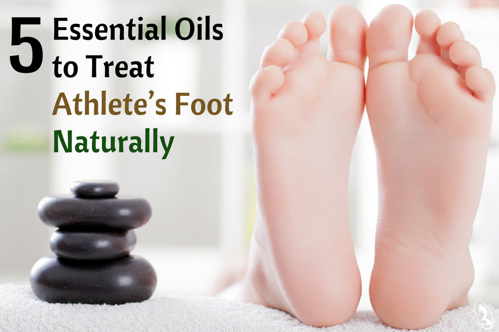 5 Essential Oils to Treat Athletes Foot