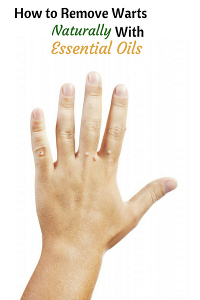 How To Remove Warts Naturally With Essential Oils Organic Aromas