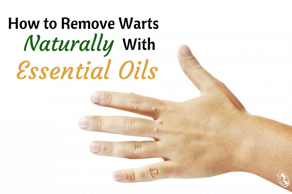 How to Remove Warts Naturally With Essential Oils - Organic